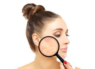 Top 5 kosmetyków do pielęgnacji skóry trądzikowej u dorosłych